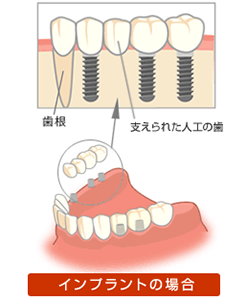 2.咬む力でほかの歯に負担をかけません