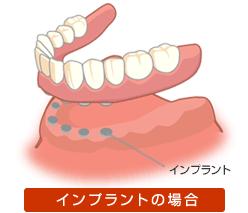 3.従来の入れ歯のようにガタつきがありません