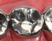 金銀パラジウム合金クラウン